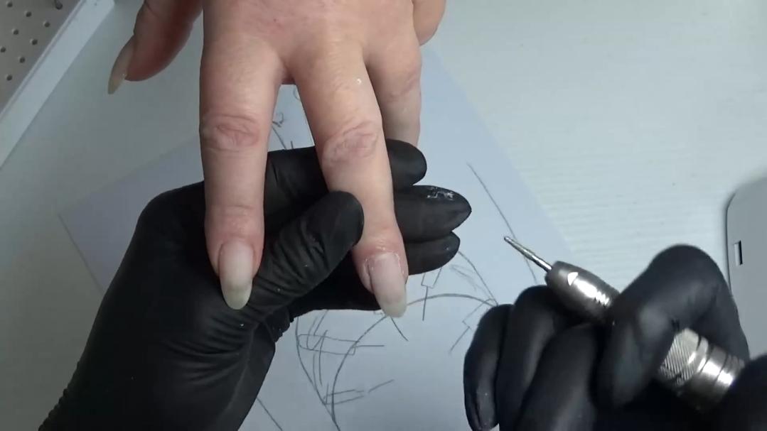 (02.2020) Oбработка на плъзнали кожни гънки